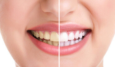 What Causes Yellow Teeth