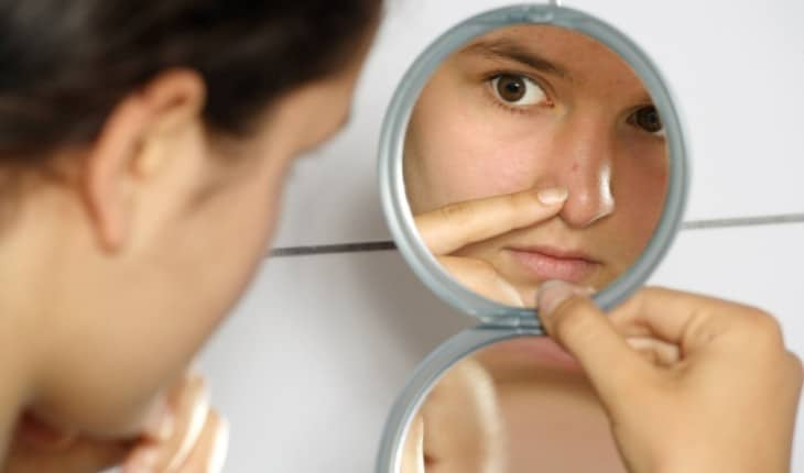 How to Naturally and Effectively Clear Acne