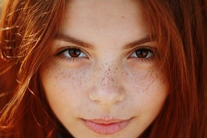 How can you Lighten Your Sexy Freckles